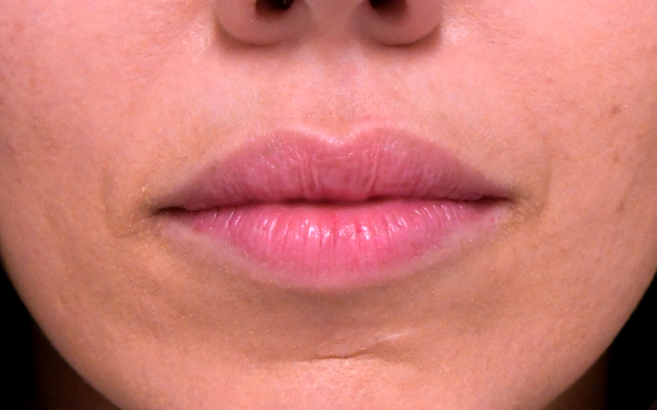 Lip Augmentation 12
