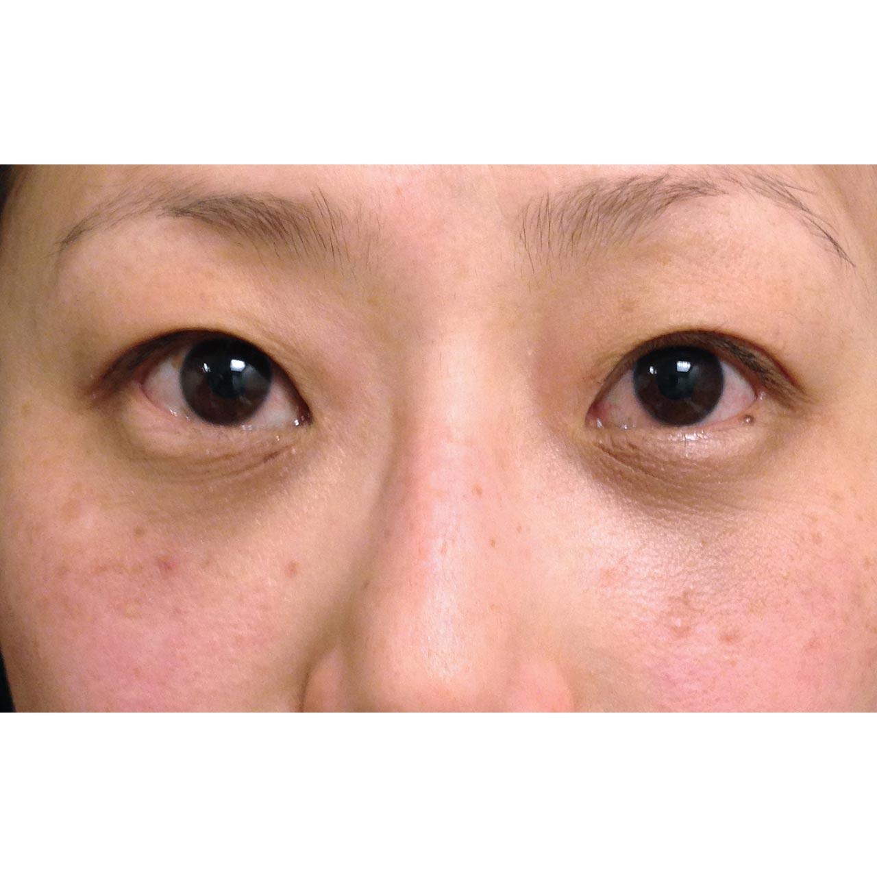 Eyelid Surgery 8