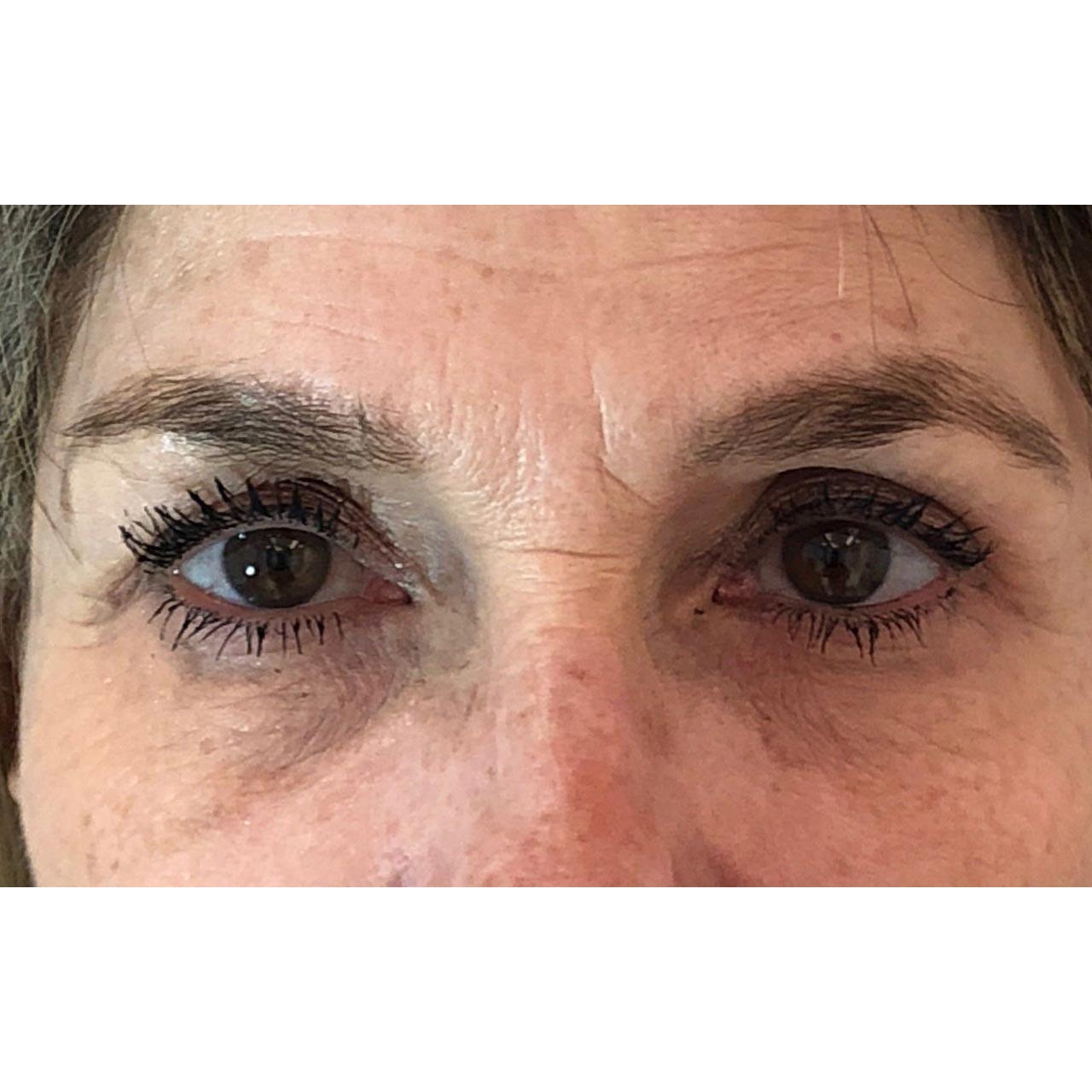 Eyelid Surgery 9