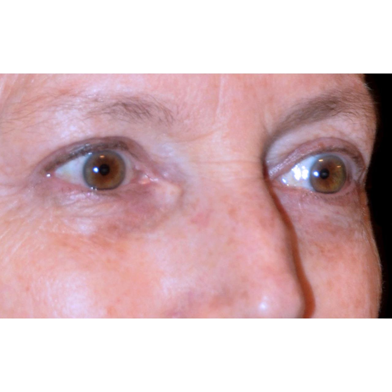 Eyelid Surgery 10