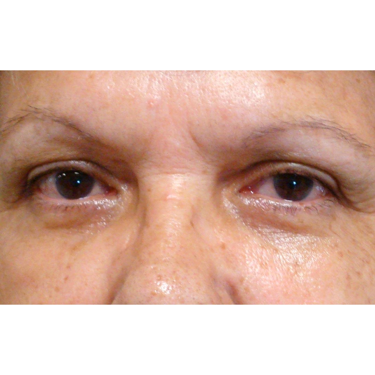 Eyelid Surgery 12