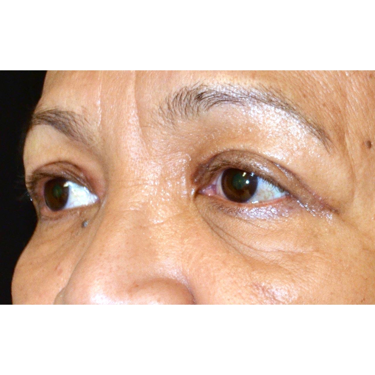 Eyelid Surgery 15