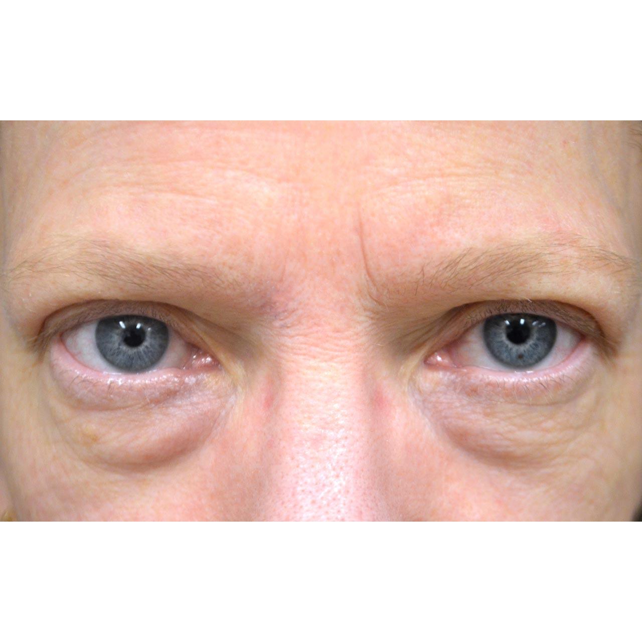 Eyelid Surgery 16
