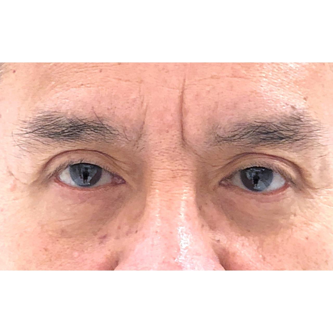 Eyelid Surgery 18
