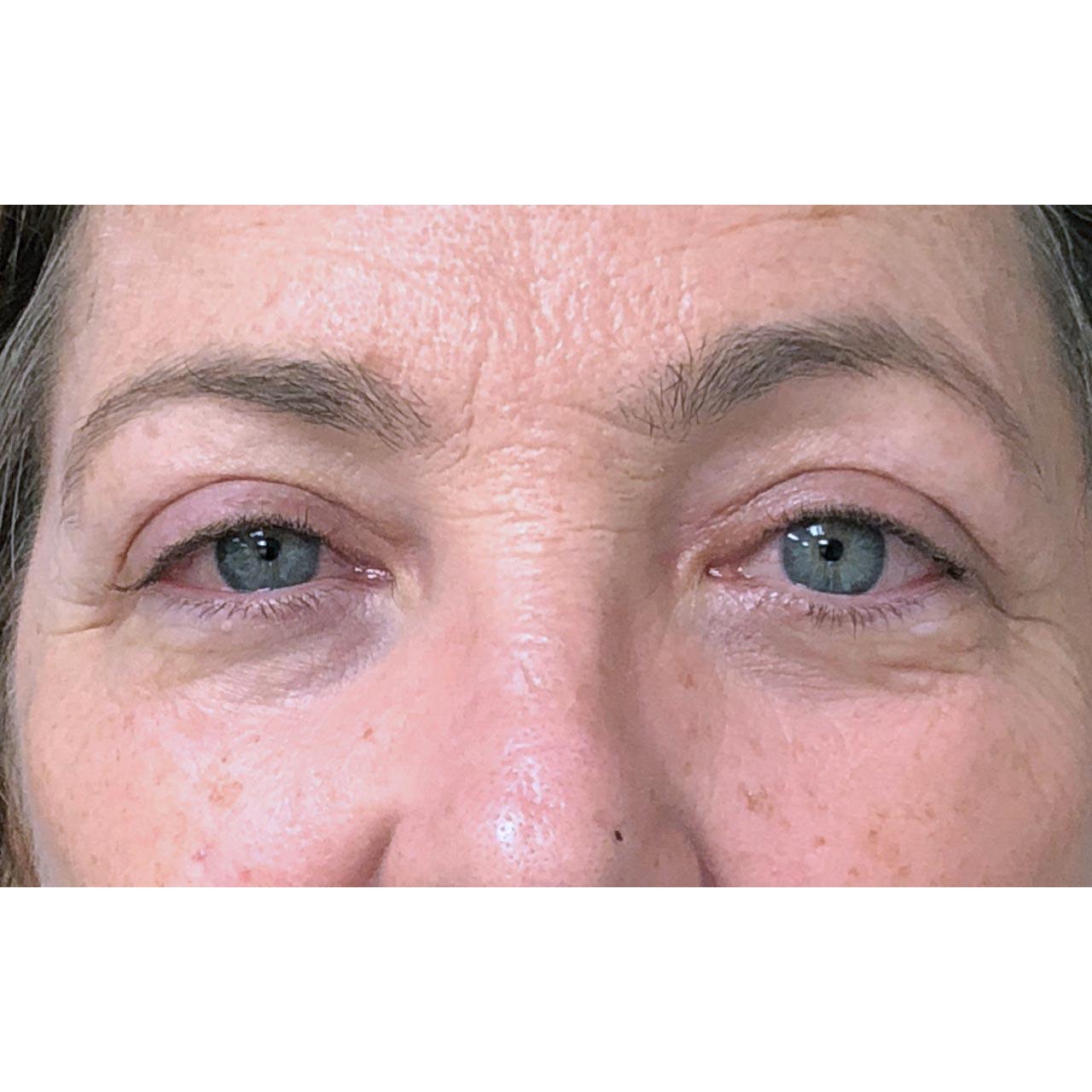 Eyelid Surgery 19