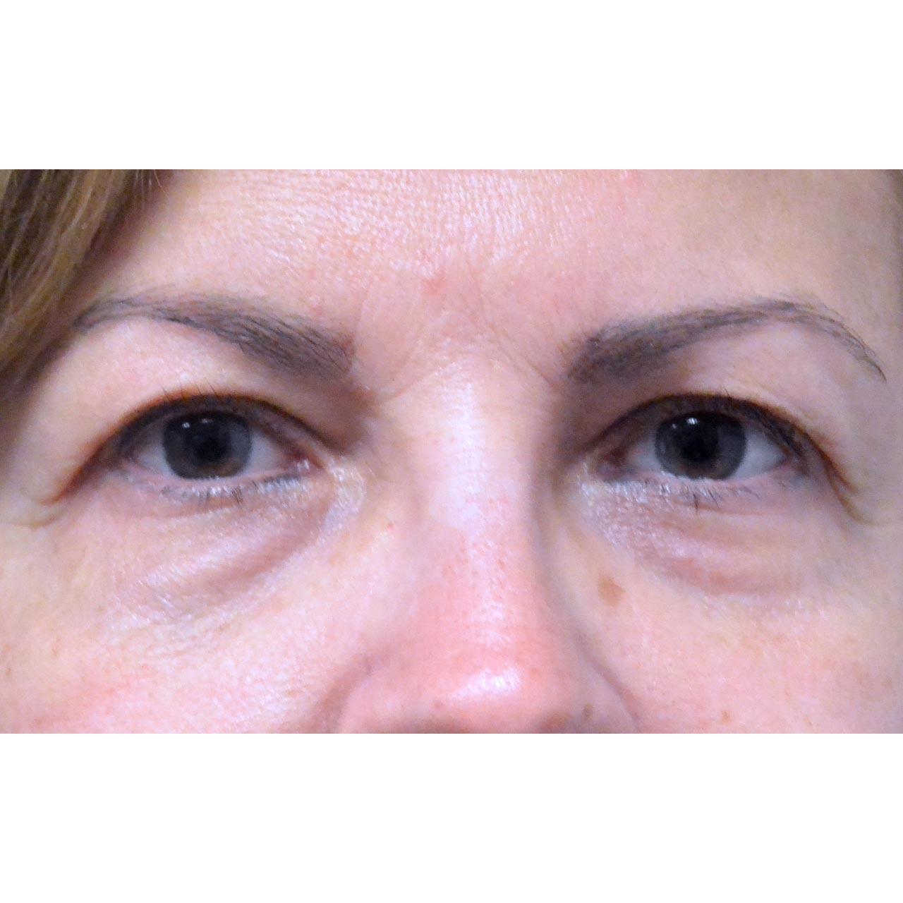 Eyelid Surgery 21