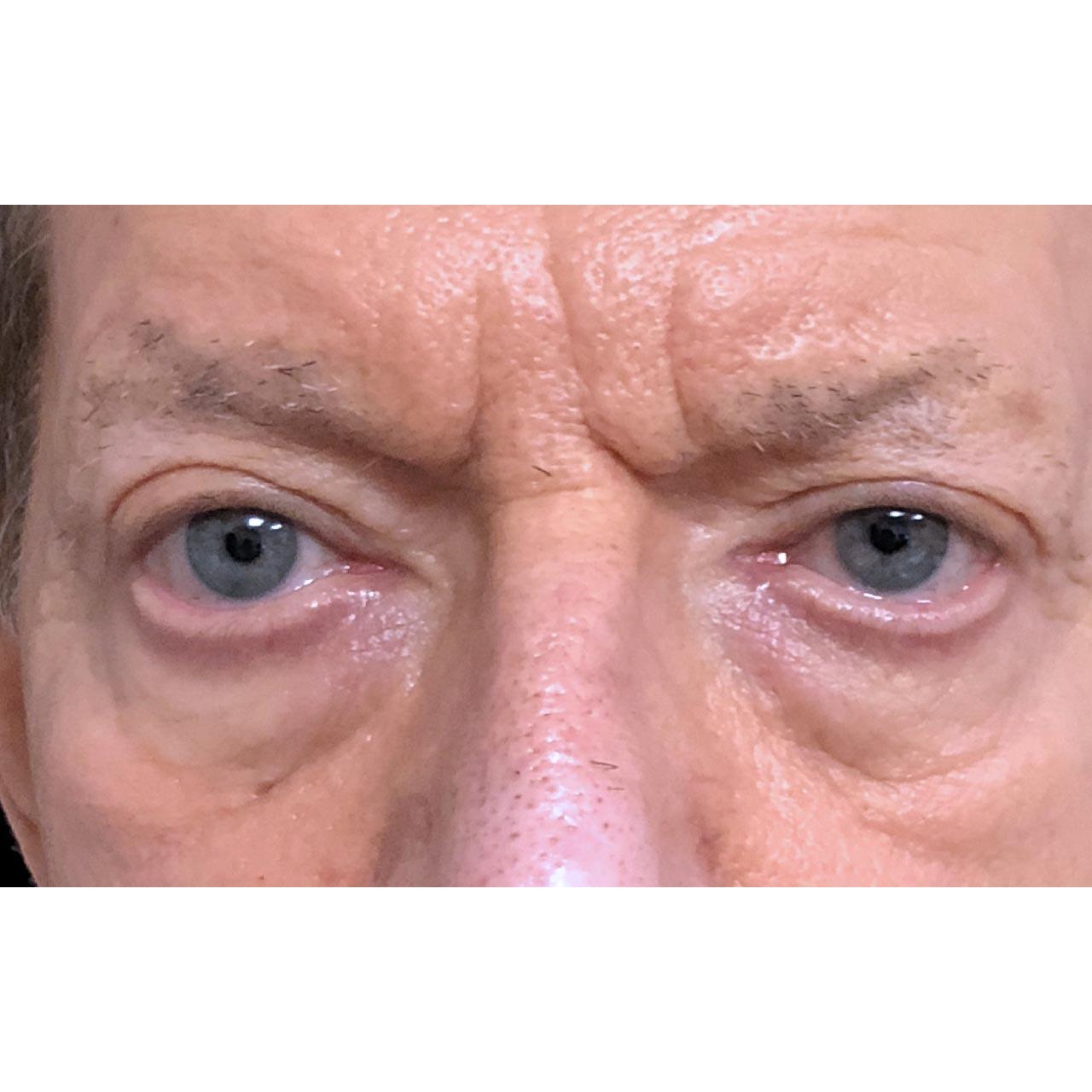 Eyelid Surgery 22