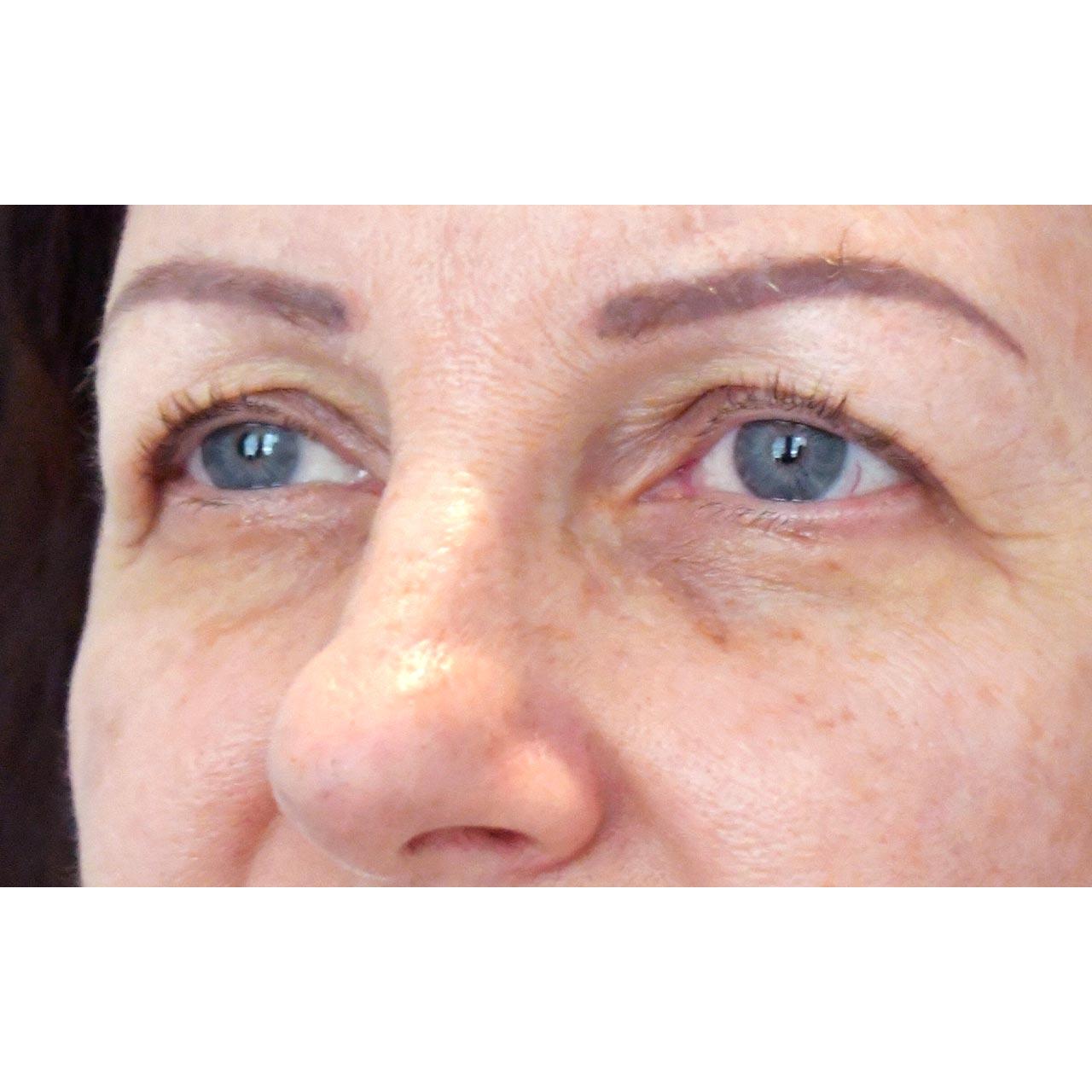 Eyelid Surgery 24