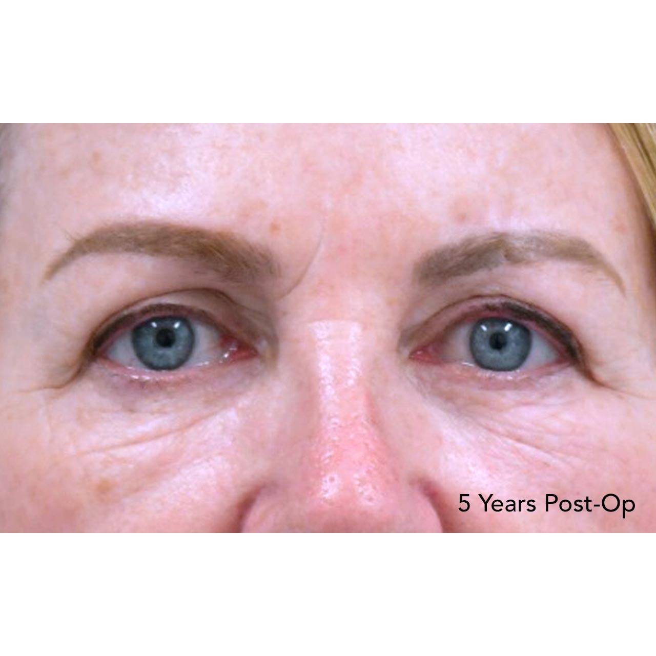 Eyelid Surgery 23