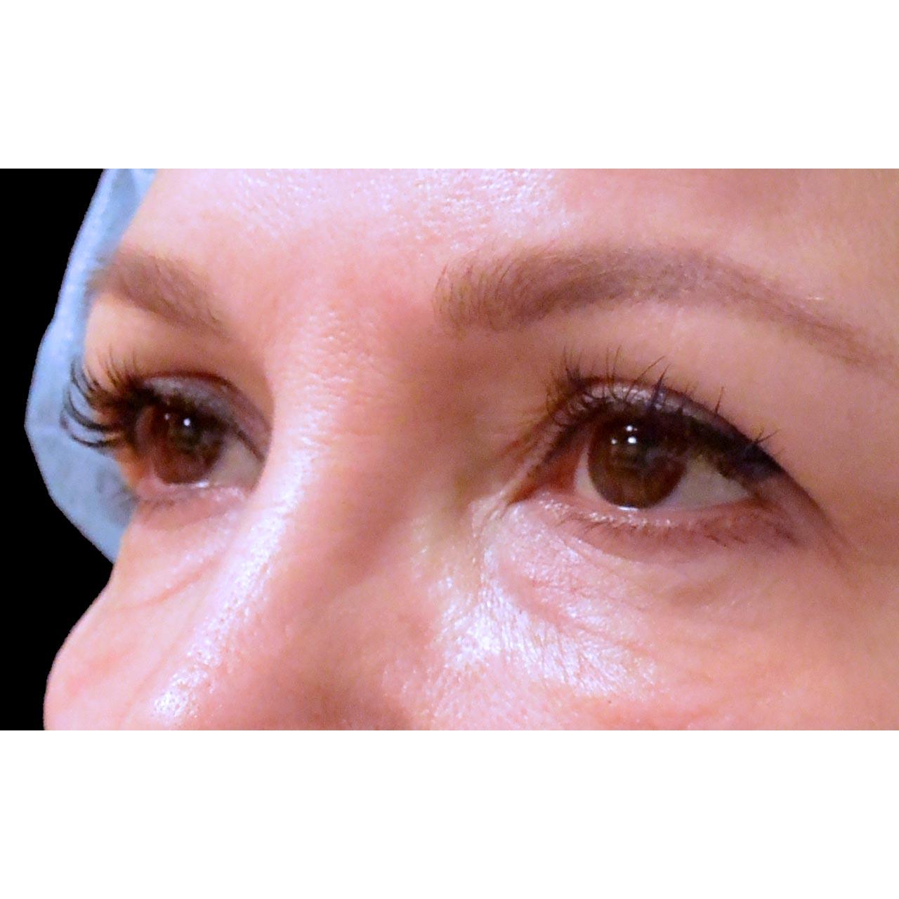 Eyelid Surgery 26