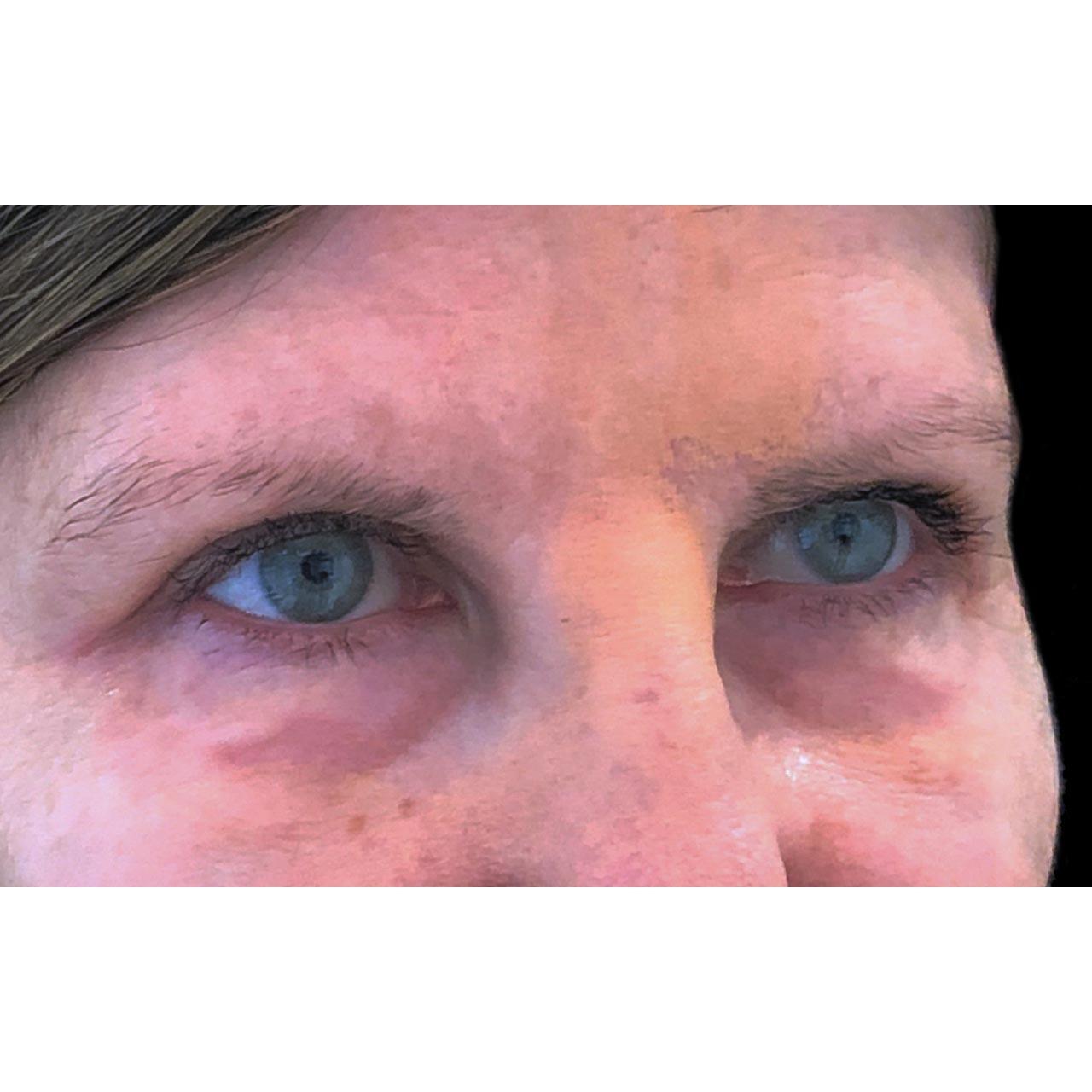 Eyelid Surgery 27