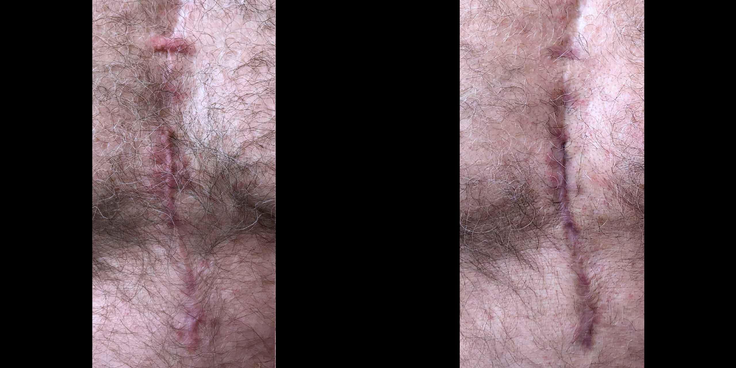 Vascular Lasers for Redness & Veins using VBeam by Dr. Hooman Khorasani
