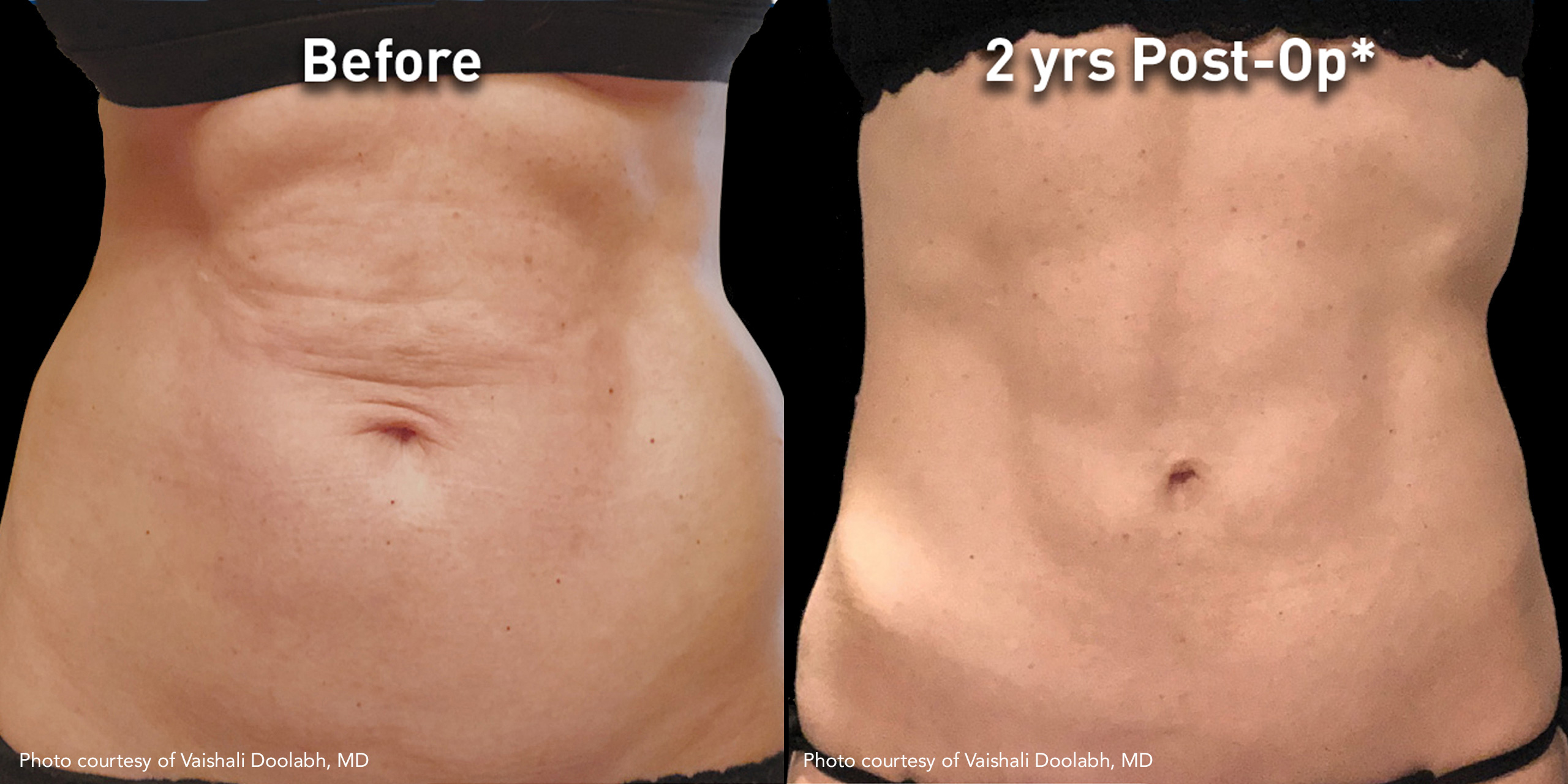 Subdermal Skin Tightening Using JPlasma