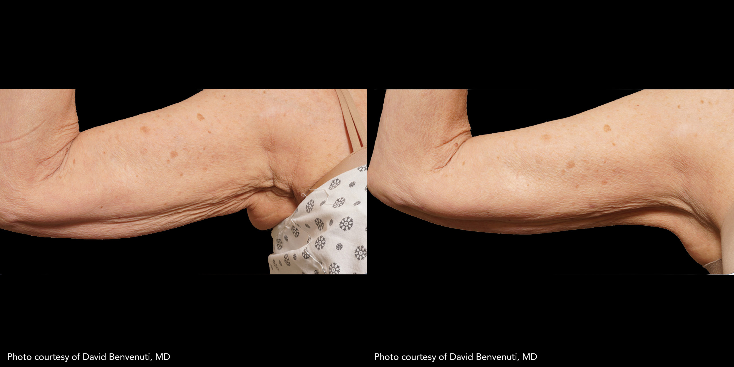 Subdermal Skin Tightening of the arm Using JPlasma