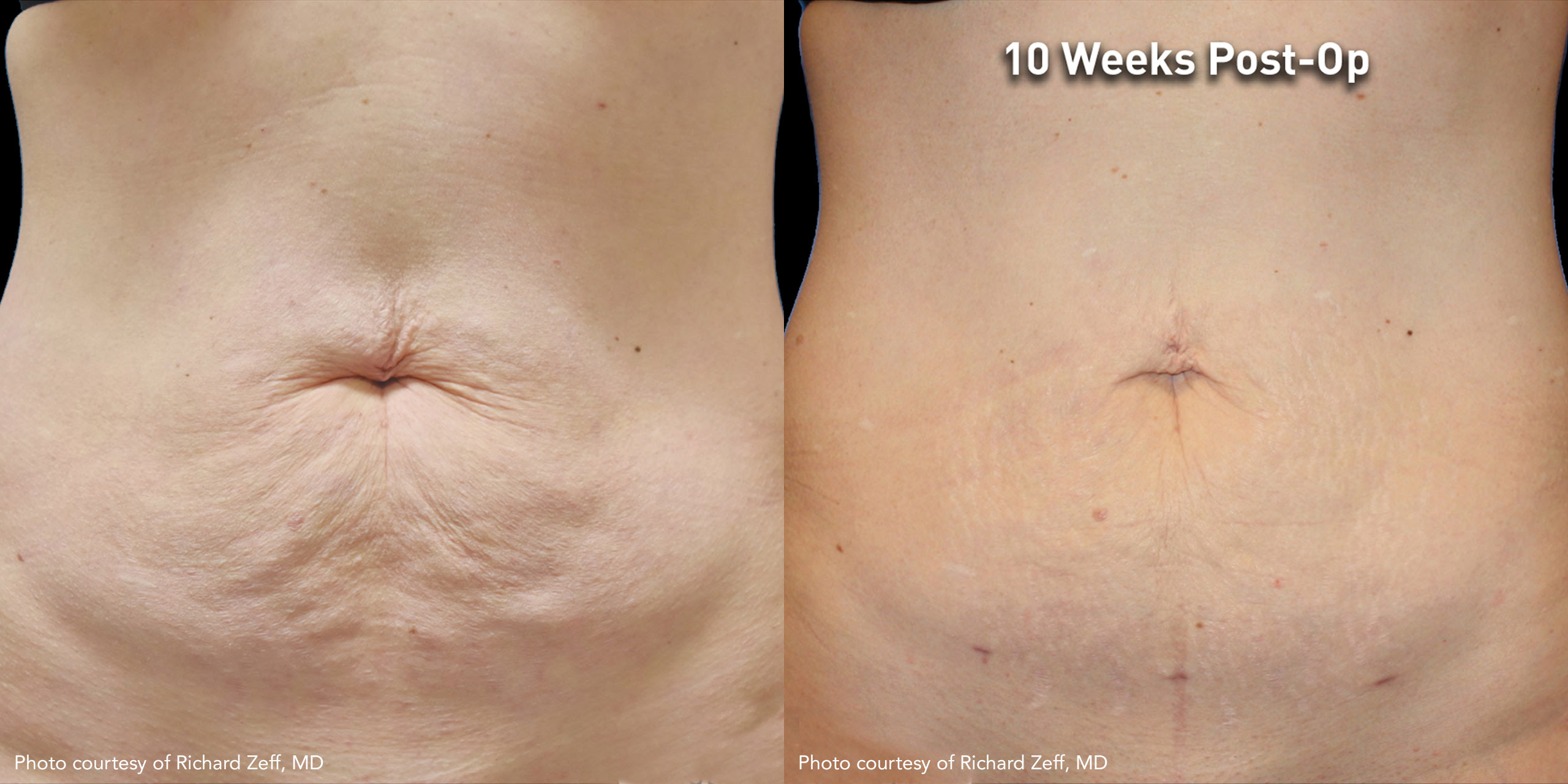 Subdermal Skin Tightening of the abdomen Using JPlasma