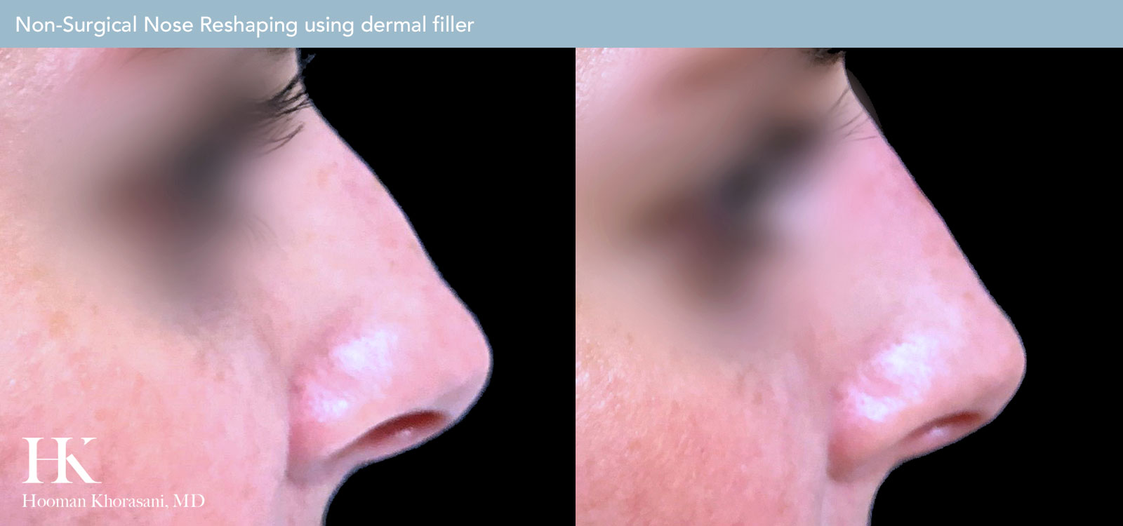 Non-Surgical Nose Reshaping Before and After Case