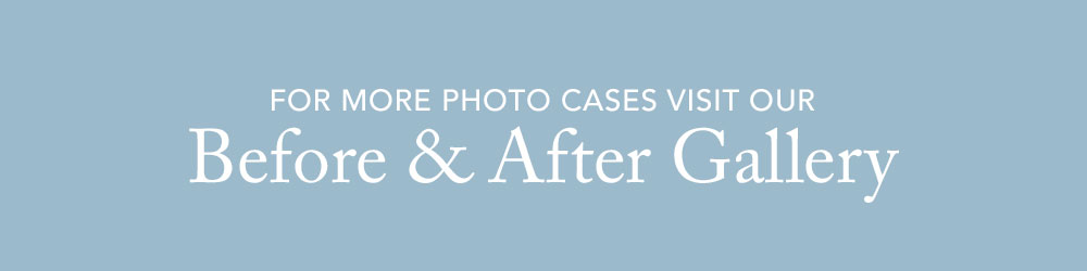 Visit our Before and After Gallery