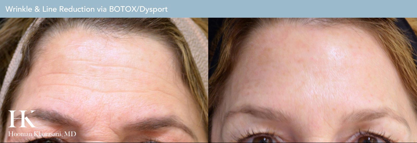 Wrinkle and Line Reduction Before and After Case