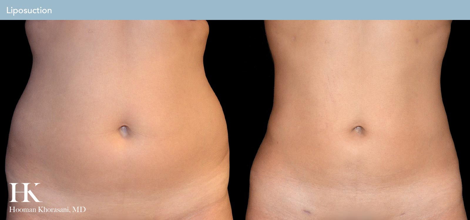 Before and After Case of Liposuction of the body