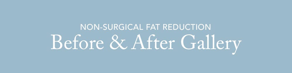 See our Non-Surgical Fat Reduction Before & After Gallery