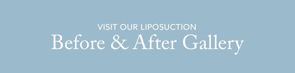 Visit our Liposuction Before & After Gallery