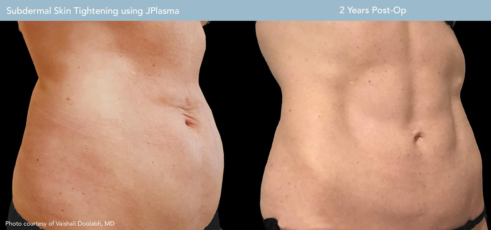 Subdermal Skin Tightening Before and After Case