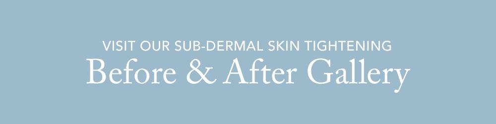 Visit our Sub-Dermal Skin Tightening Gallery