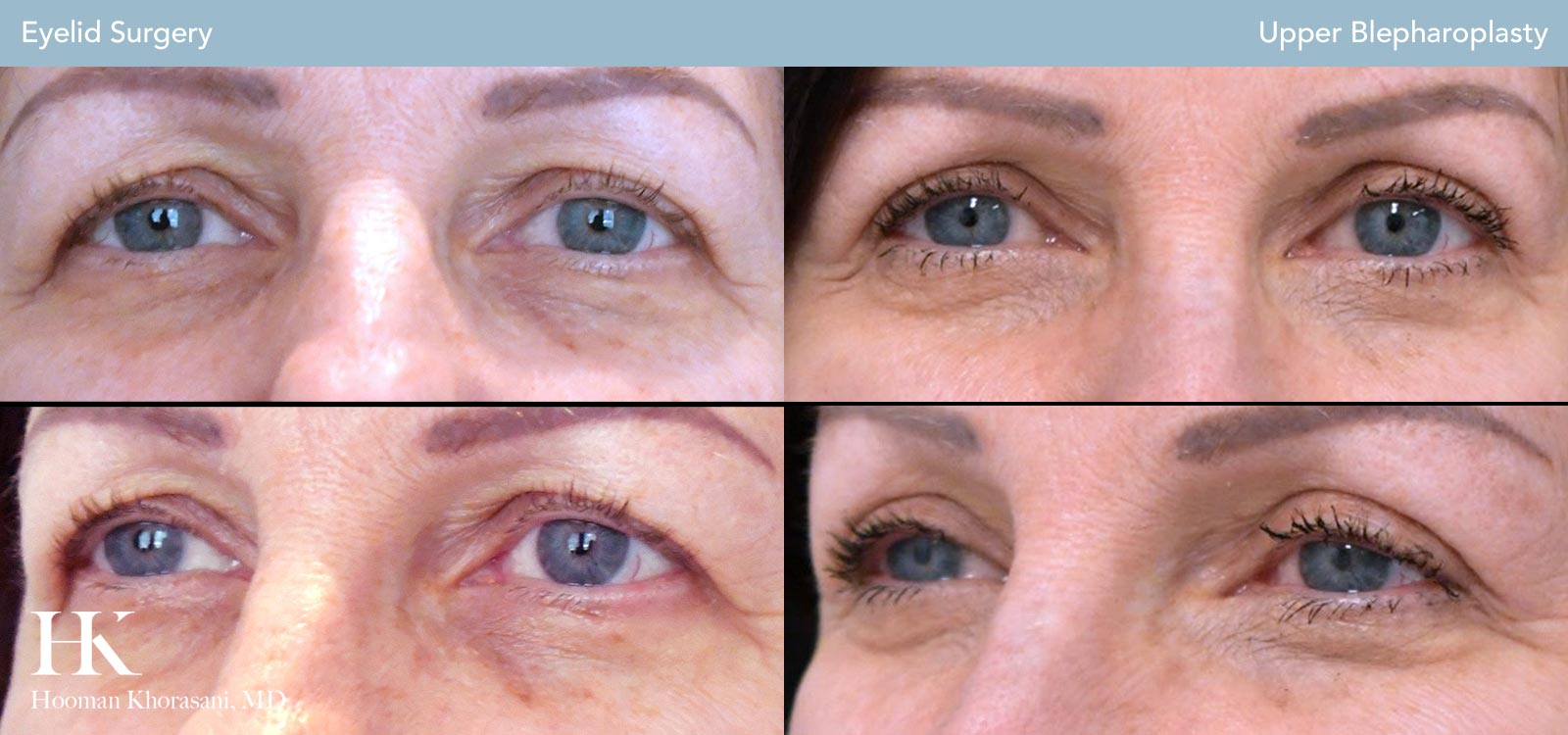 Eyelid Surgery Before and After Case