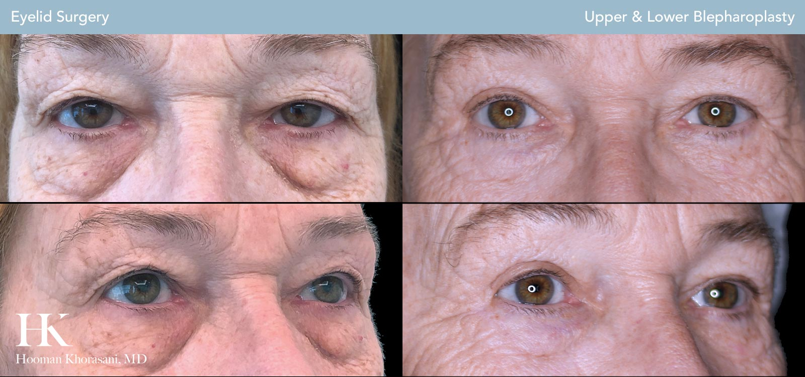 Upper and Lower Eyelid Before and After Case