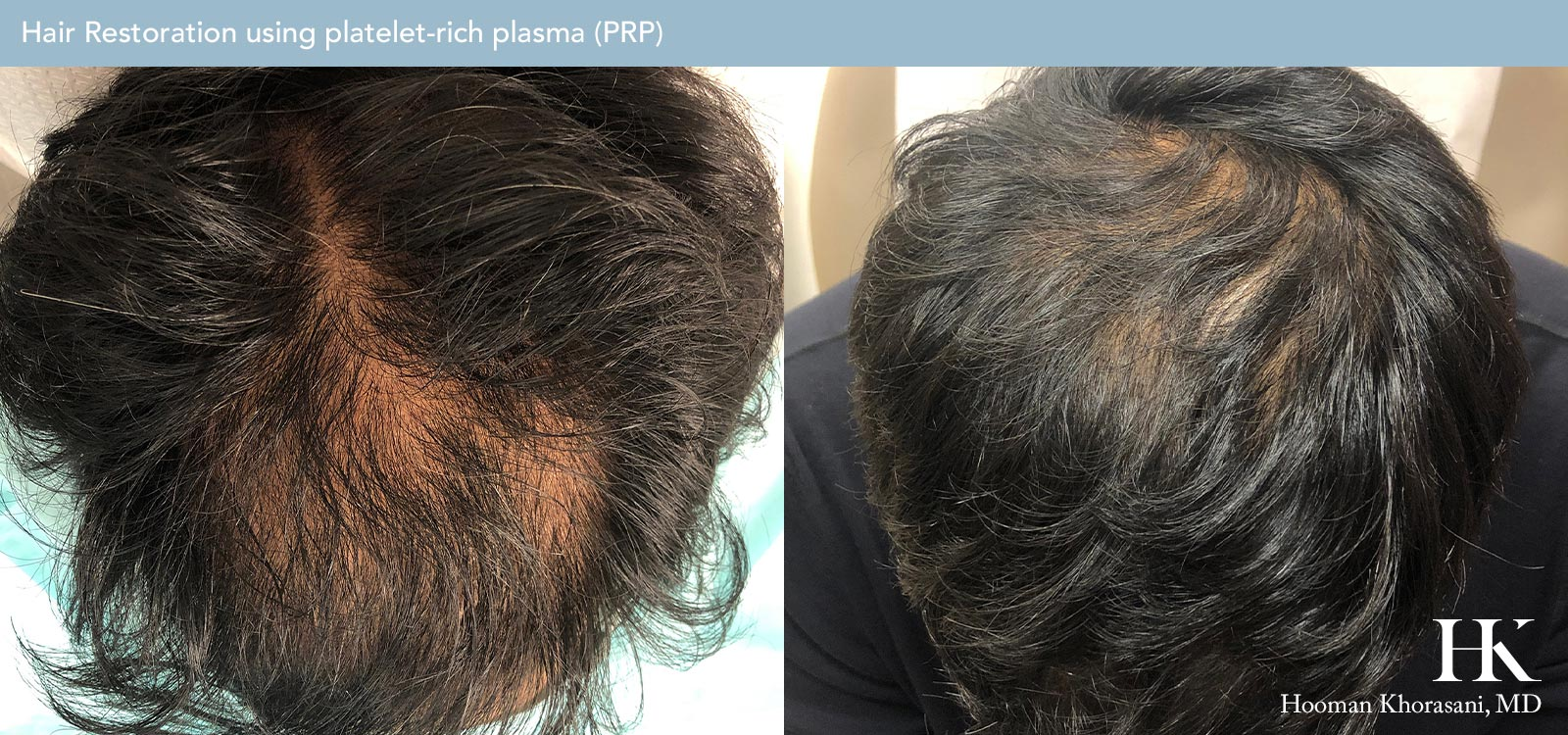 Hair Restoration Before and After Case