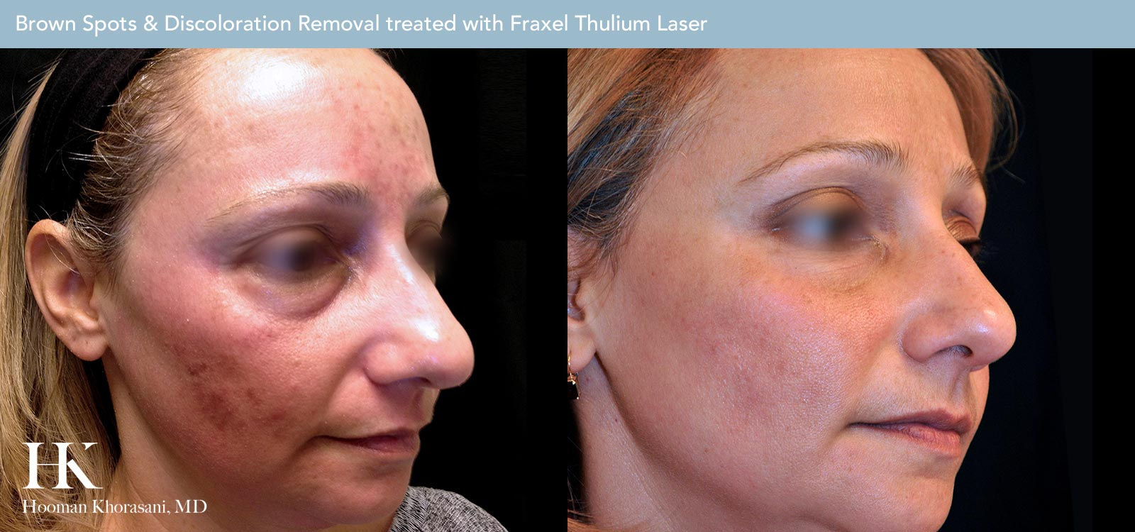 Brown Spot & Discoloration Removal Before and After Case