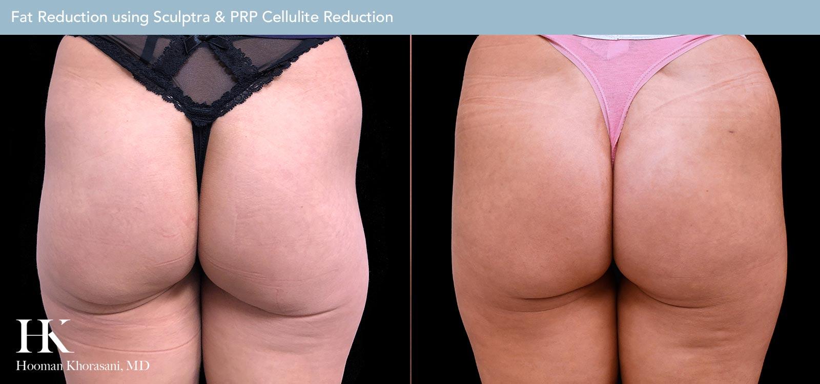 Fat Reduction using Sculptra & PRP Cellulite Reduction Case