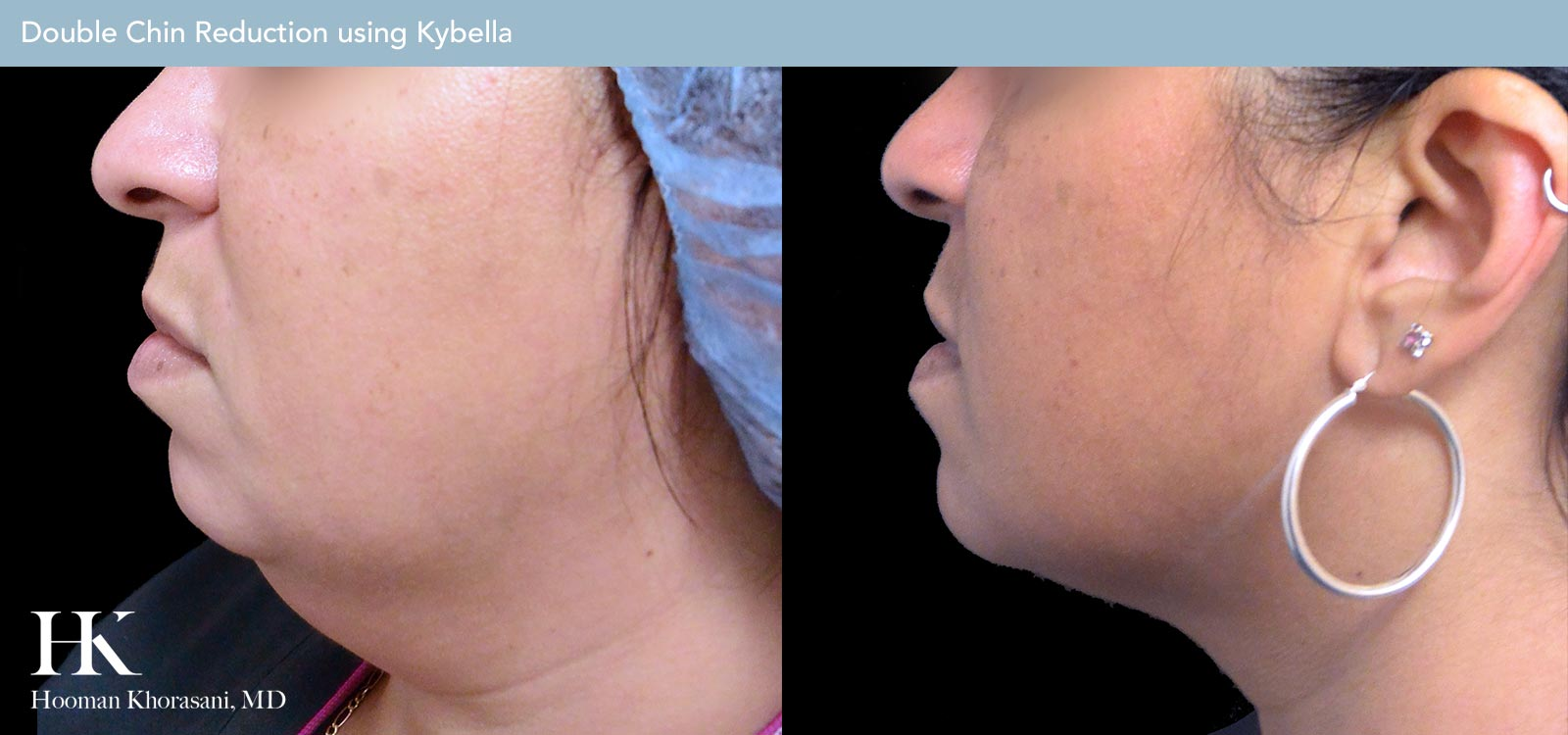 Double Chin Reduction Before and After Case