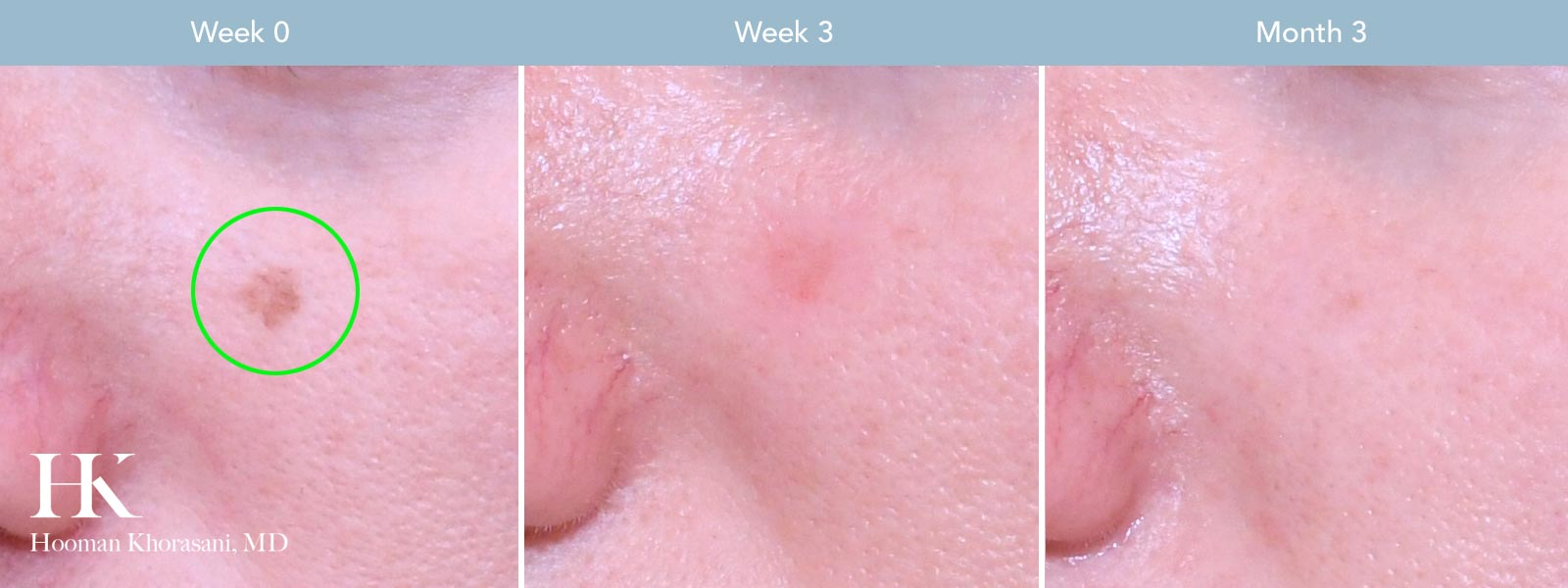 Visit our Brown Spot and Discoloration Removal Gallery