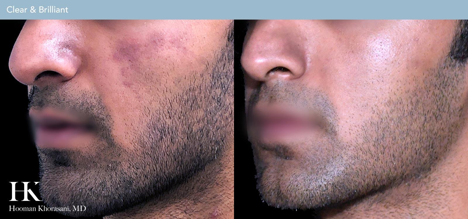 Visit our Laser Skin Resurfacing Gallery