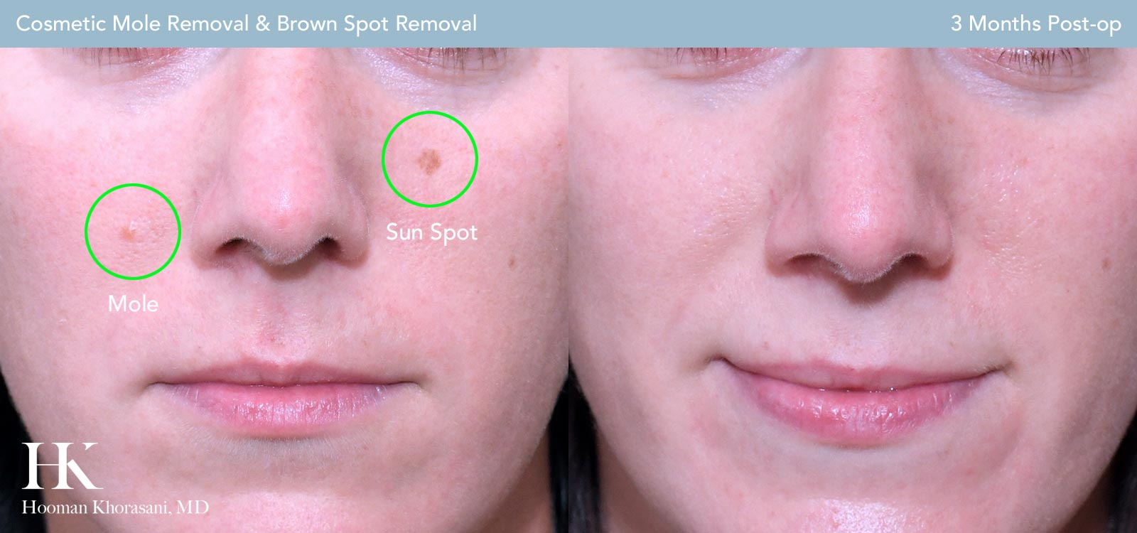 Visit our Cosmetic Mole Removal Gallery