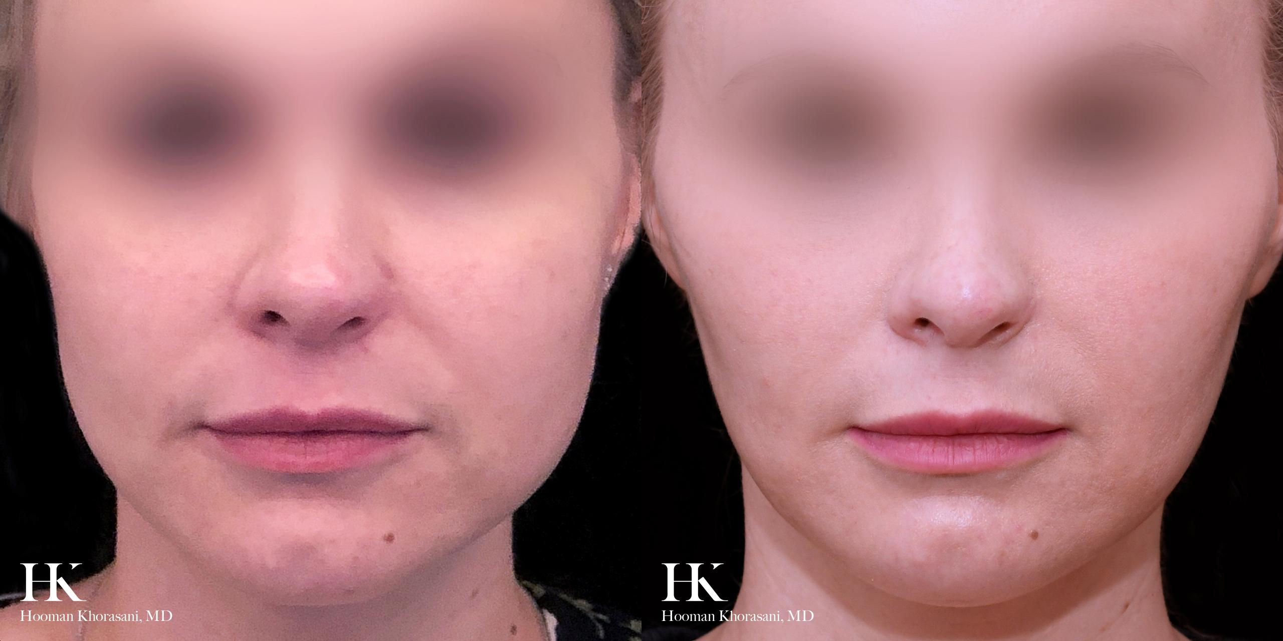 Cheek Reduction by Hooman Khorasani, MD