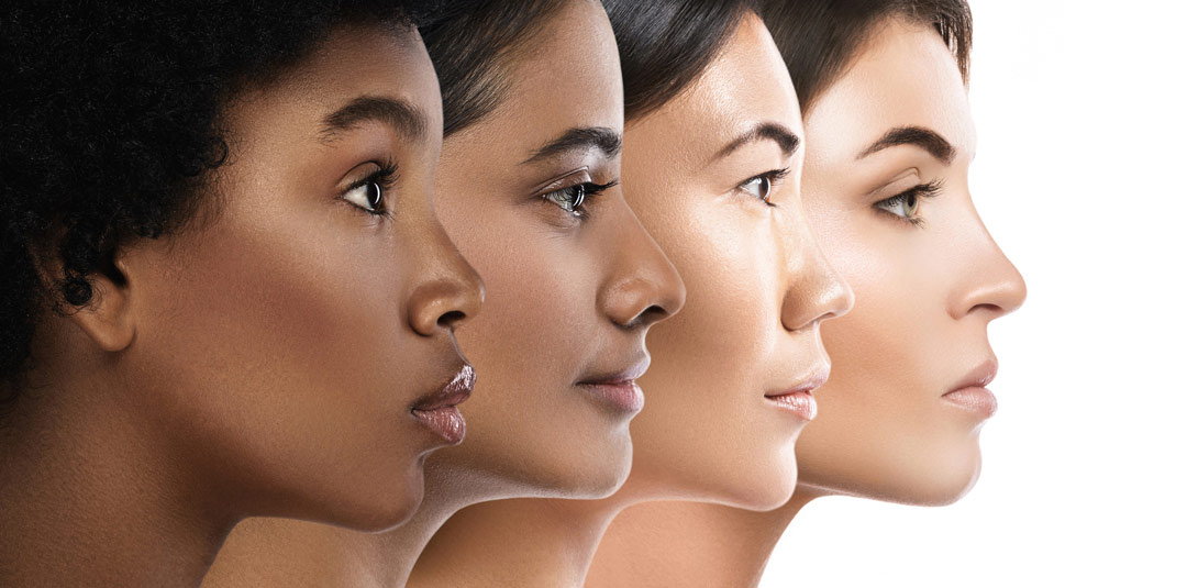 Cosmetic Dermatology Diagnosing and Treating Skin of Color