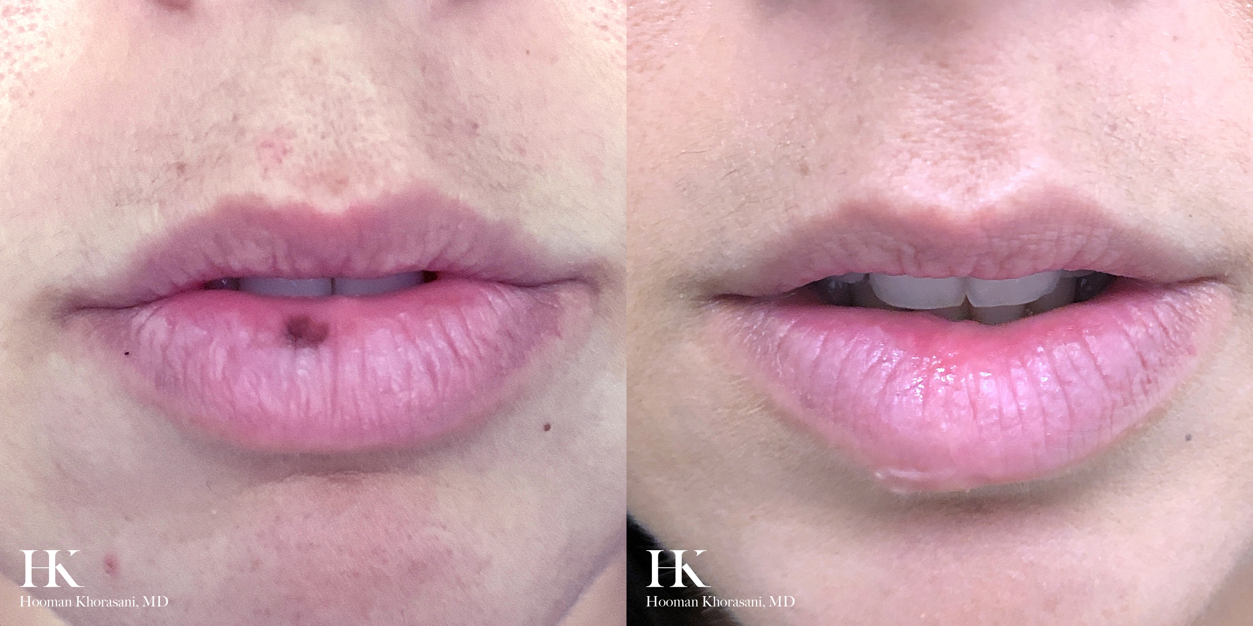 Cosmetic Mole Removal on the Lip - Dr. Hooman Khorasani