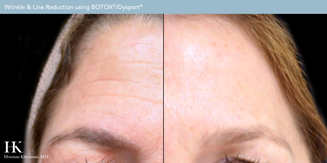 Before and After of Wrinkle & Line Reduction by Dr. Hooman Khorasani