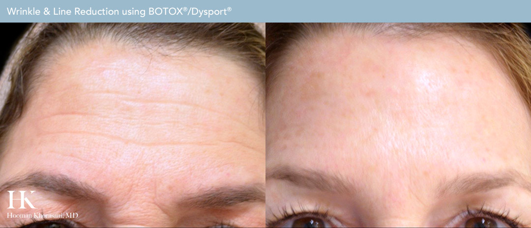 Wrinkle & Line Reduction Before & After by Dr. Hooman Khorasani
