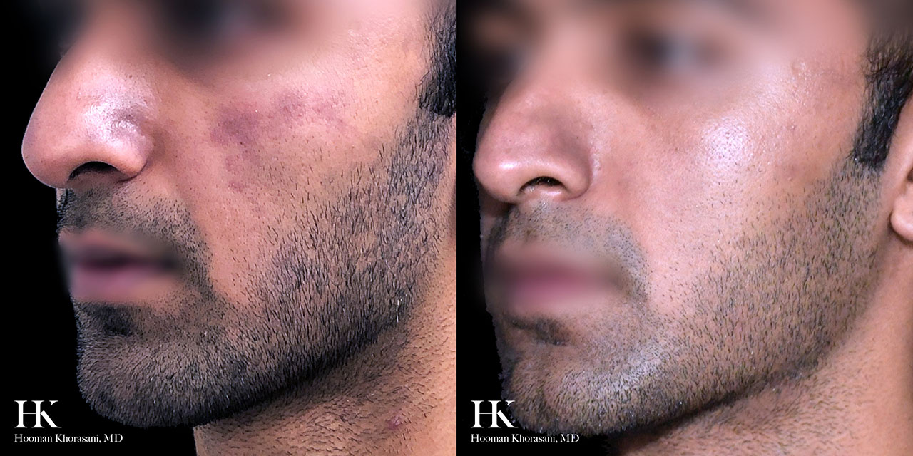 Before & After Clear & Brilliant Laser Skin Resurfacing by Dr. Hooman Khorasani