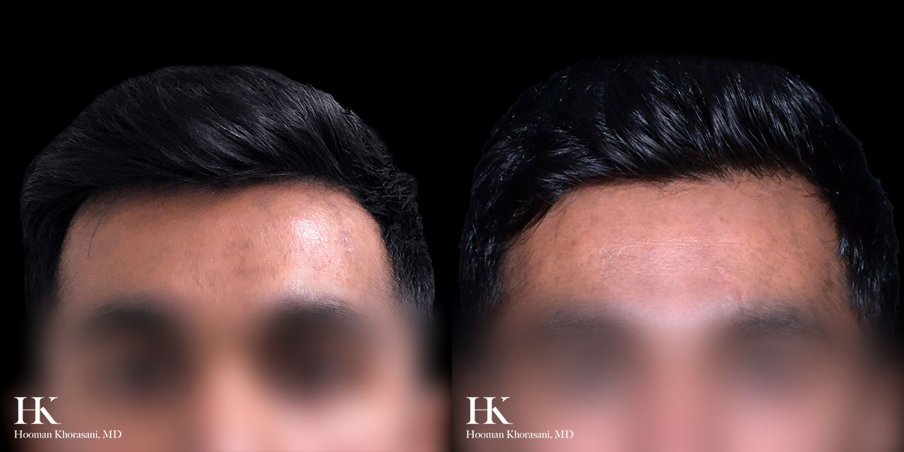 Before and After Clear and Brilliant Laser Skin Resurfacing by Dr. Hooman Khorasani