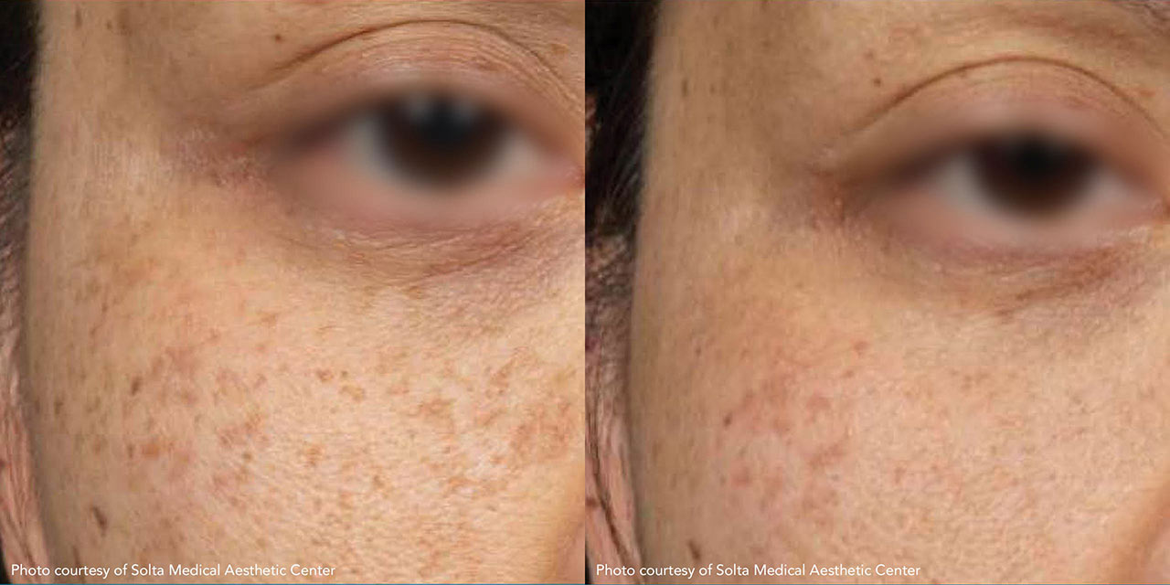 Before and After Clear and Brilliant Laser Skin Resurfacing offered by Dr. Hooman Khorasani