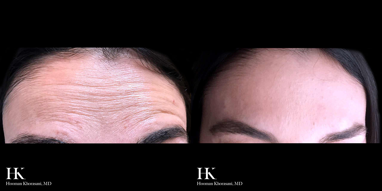 Wrinkle and Line Reduction using Dysport/Botox by Dr. Hoooman Khorasani