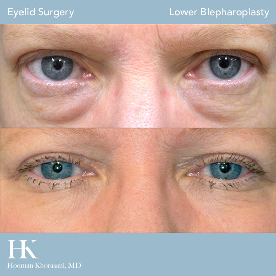 Before and After Lower Eyelid Surgery by Dr. Hooman Khorasani