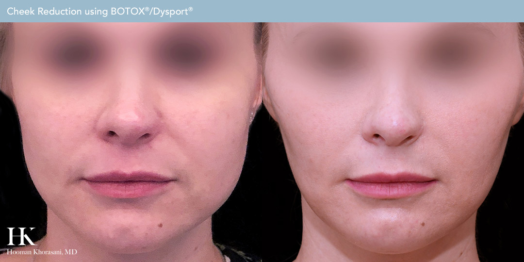 Cheek Reduction Using Botox/Dysport Before and After by Dr. Hooman Khorasani