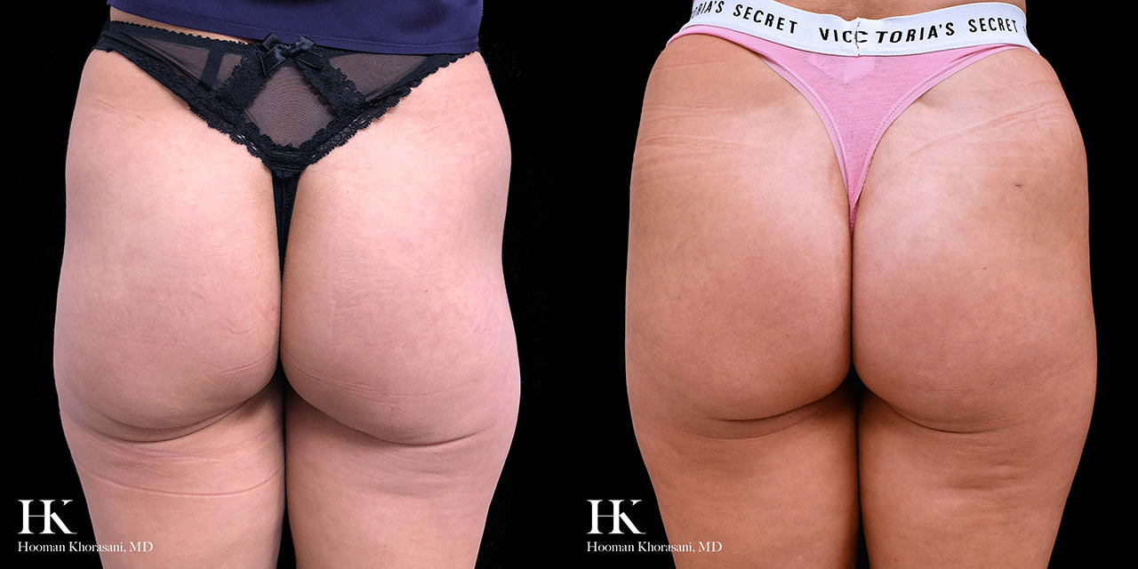 Buttocks Enhancement Using Sculptra Injections and PRP by Dr. Hooman Khorasani