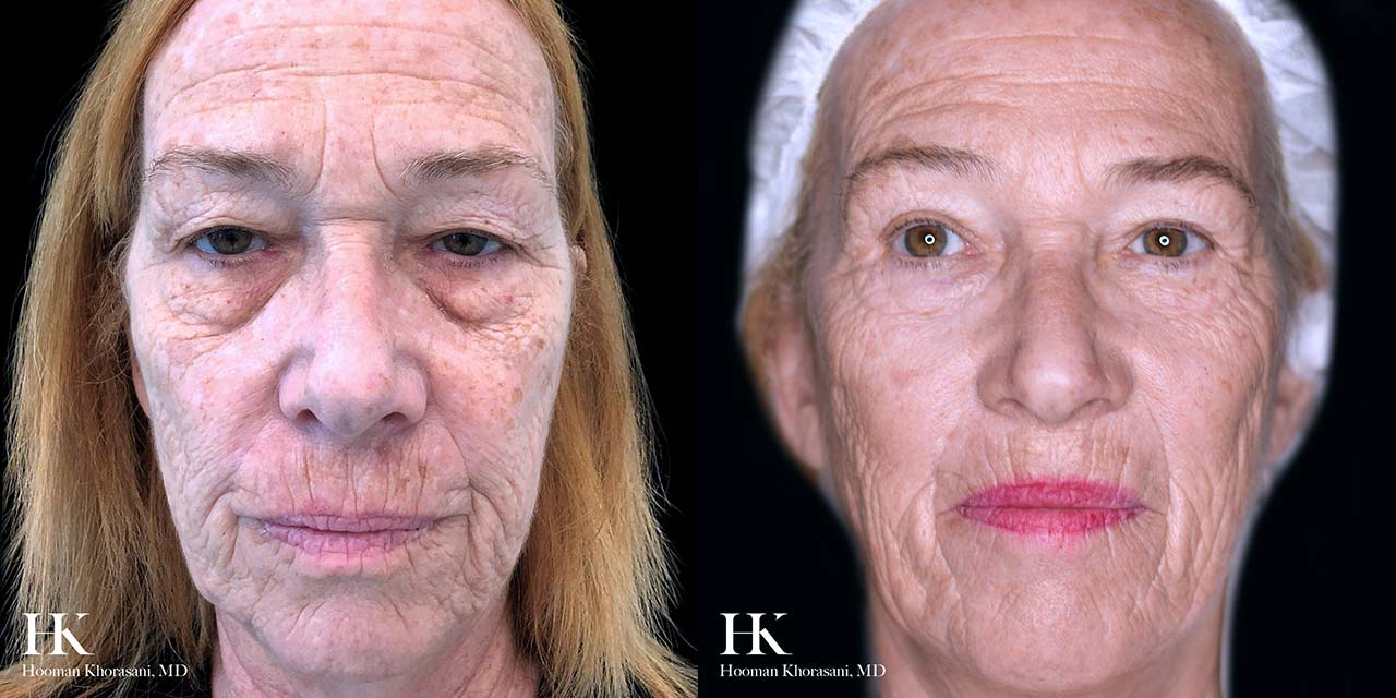 Laser Skin Resurfacing using TotalFX by Dr. Hooman Khorasani
