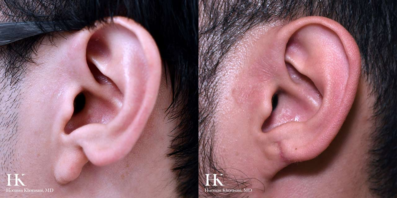 Earlobe Repair by Dr. Hooman Khorasani